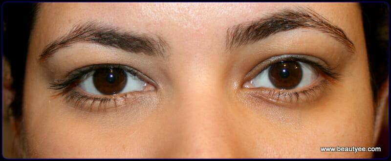 left eye - applied corrector : Right eye - nothing